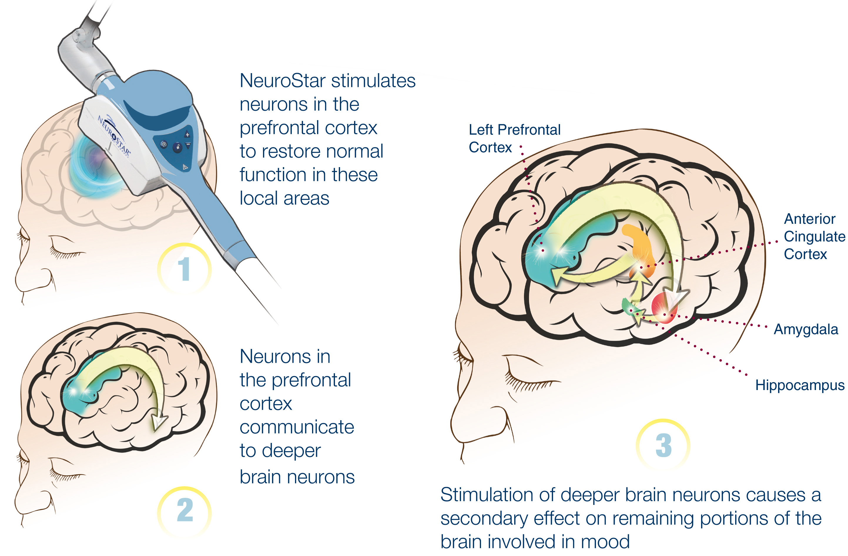TMS-Therapy-NeuroStar-3-step-MOA-Illustration