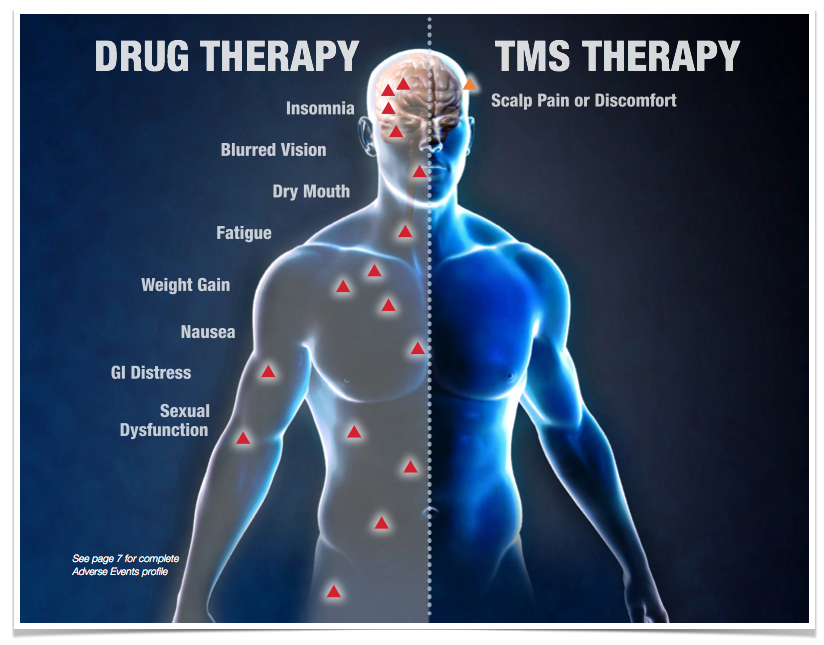 TMS-therapy-vs-Drug-therapy-side-effects