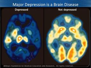 depressed vs. non-depressed brain
